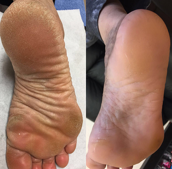 smooth, soft heels. callus peel treatment